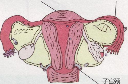 宫颈出血是宫颈糜烂变严重了吗