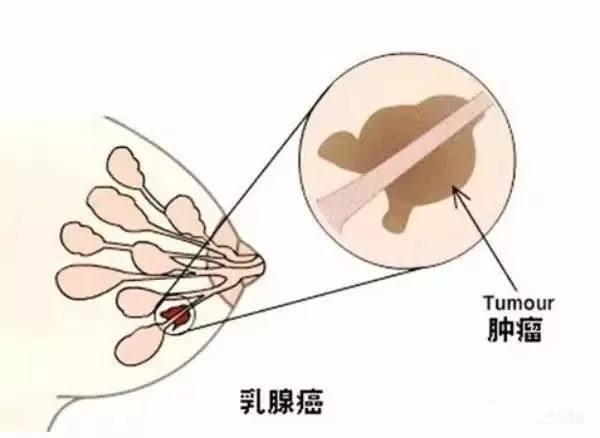 乳腺纤维瘤的诊断要点是哪些?你所不了解的疾病详情!