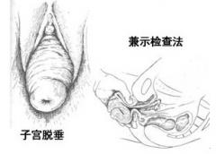 子宫脱垂手术后的注意事项有哪些