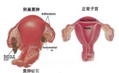 淮安卵巢囊肿手术费用要多少?看清楚,需了解