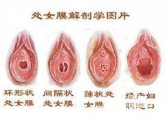 做处女膜修补术需要多少钱?5点收费,你看懂吗?