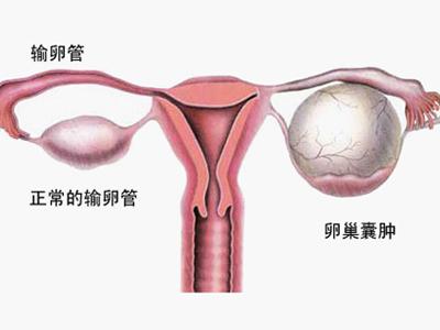 b超检查卵巢囊肿
