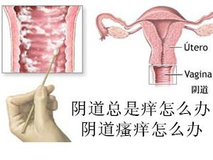 阴道总是痒怎么办,6个缓解阴道瘙痒的小妙招