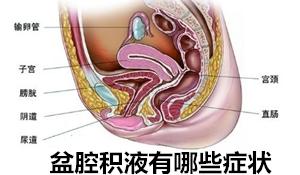【盆腔积液有哪些症状】出现这些症状时,要小心!