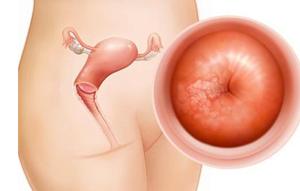 宫颈糜烂的治疗方法都有哪些 三大治疗方案