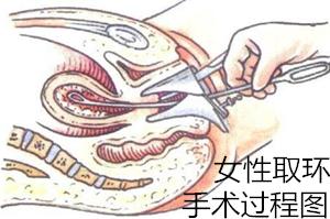 【图集】女性取环手术过程图'拼二胎'定要知道的事
