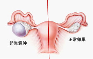 卵巢囊肿的症状,有多可怕_出现这6种症状时,要小心