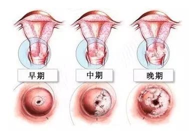 【疑问】宫颈糜烂可以自愈吗?医生提醒,宫颈糜烂需重视!