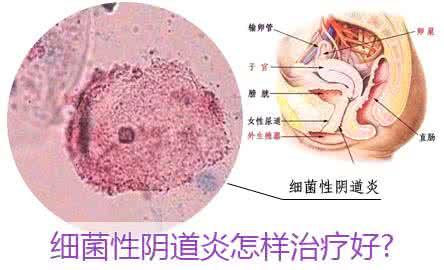 细菌性阴道炎怎么治?警惕!4种细菌性阴道炎感染途径!