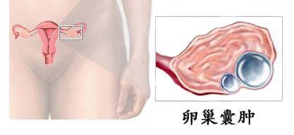 卵巢囊肿做手术危险吗?卵巢囊肿治疗要及早,谨防癌变!