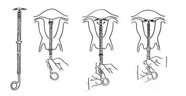 【图解】取环手术全过程_带你具体了解取环的每步骤!
