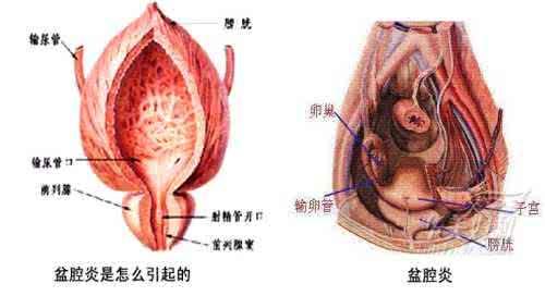 盆腔积液是怎么引起的?4个盆腔积液的日常护理妙招!
