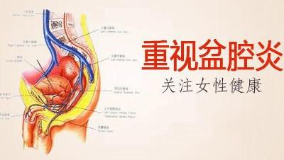 淮安盆腔炎治疗费用多少?对此你真的了解吗?
