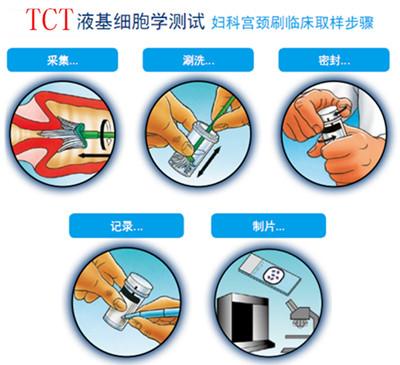 揭晓:淮安tct检查多少钱?收费标准高吗?
