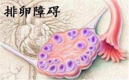 排卵障碍有哪些症状