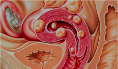 淮安子宫肌瘤治疗费用是多少?【注意】子宫肌瘤的5大症状